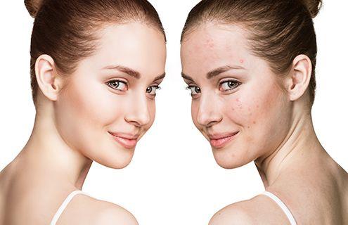 Zenza - Schoonheidssalon - Zonhoven - acne